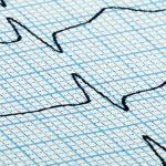 EKG-Kurven